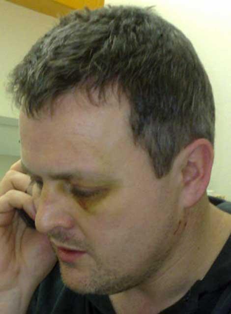 Conor O'Dwyer's black eye